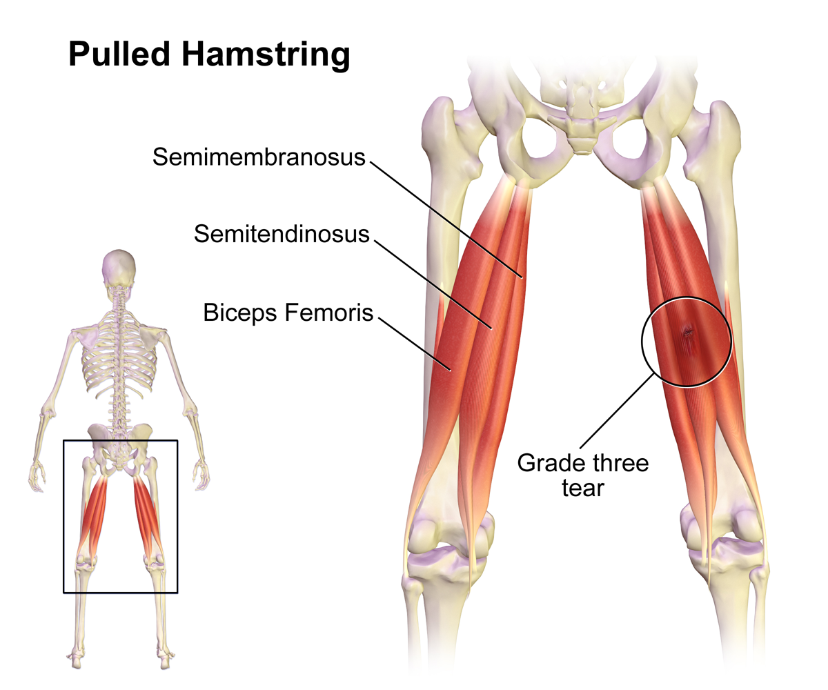 Hamstring Muscles, Hamstring Muscles Anatomy, Hamstring Image, Pulled Hamstring, Hamstring Picture