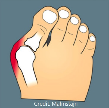 How To Relieve Bunion Pain Sunstone Registered Massage Therapy Vaughan Ontario